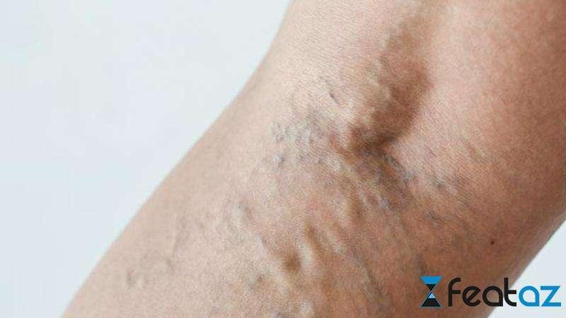 cum de a vindeca varicarea dar piciorul